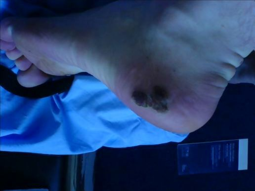 common wart. common wart on foot.