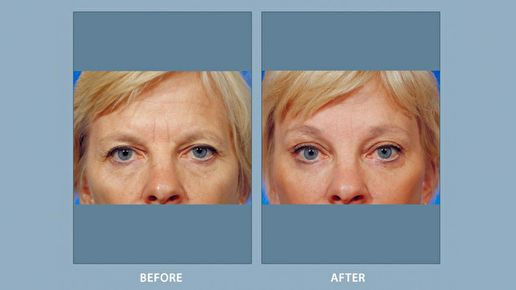 Eyelift Treatment: Enhancing Vision and Appearance Simultaneously
